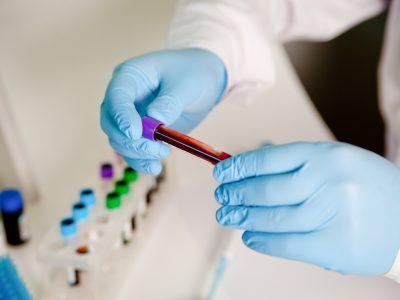 Laboratory Safety Training:  Bloodborne Pathogens (Level 1)